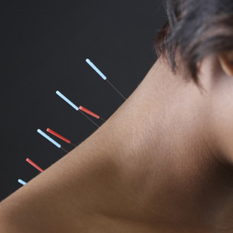 Seirin dry needling J-type